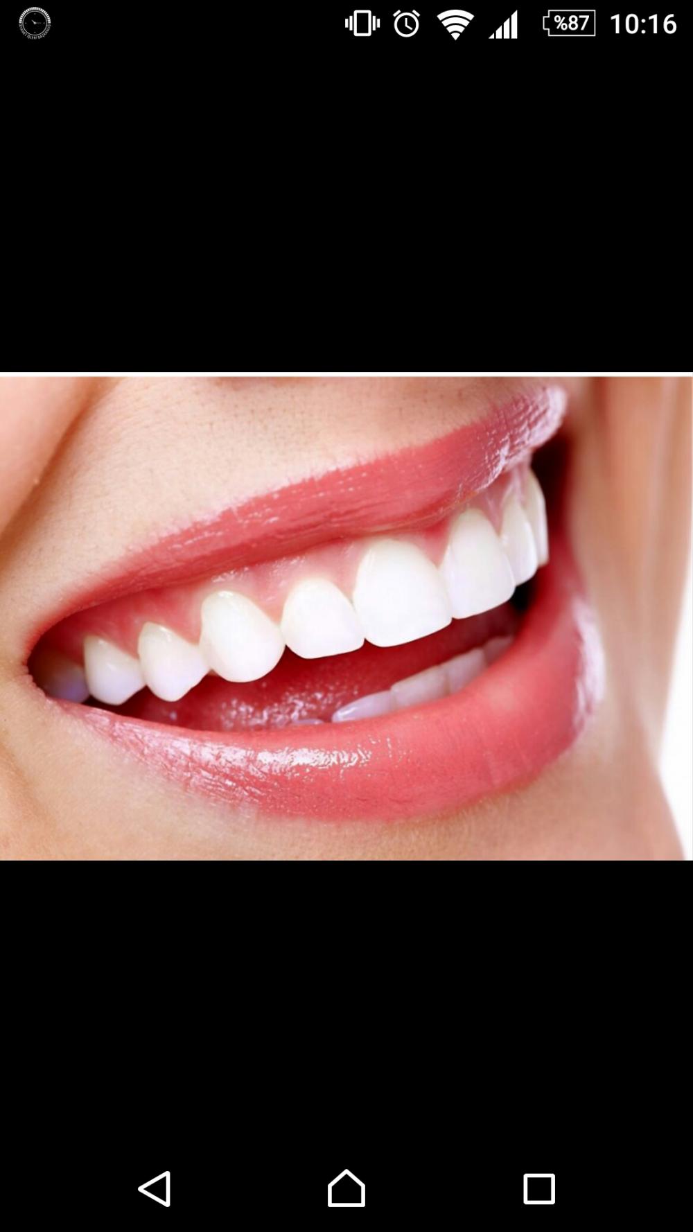 Dişlerinize ne kadar özen gösteriyorsunuz?
